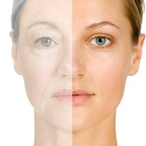 Antiaging O Rejuvenecedor Facial