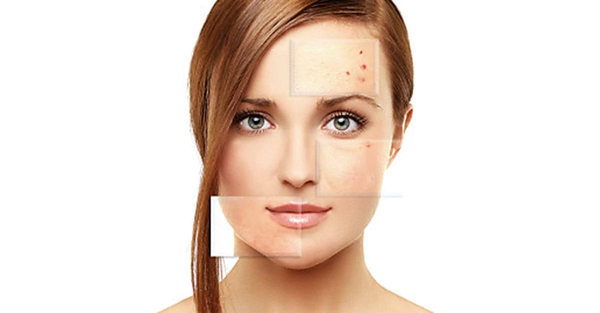 Tratamiento_acne_Nuo_Dermoestetica