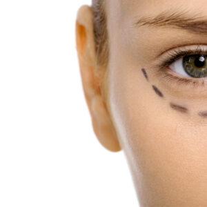 Redensity Eyes II