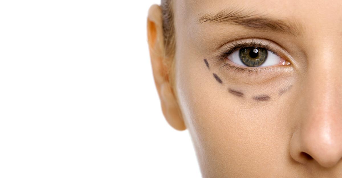 Redensity_Eye_II_Nuo_Dermoestetica